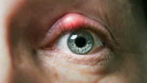 SG-Difference-Between-a-Chalazion-and-a-Stye-722x406