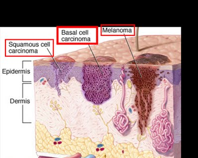 basal cell carcinoma pictures diagram