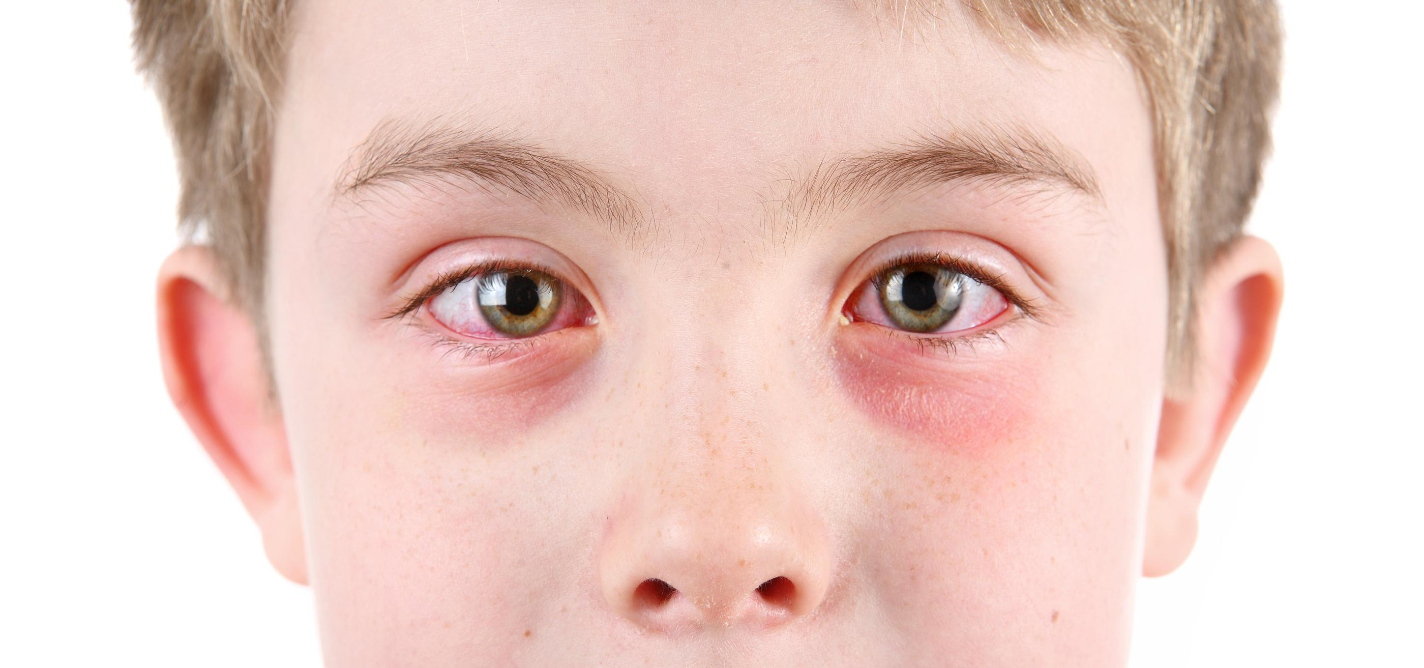 Allergic conjunctivitis in children